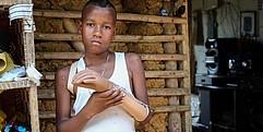 Eine Junge schaut in die Kamera. Mit der rechten Hand hält er seine linke Unterarmprothese.